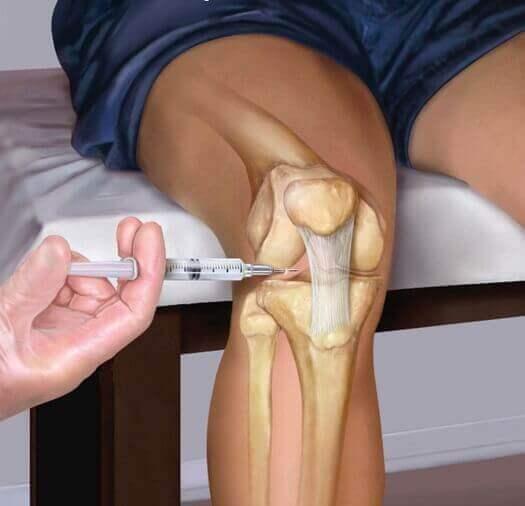 PRP-терапия при болях в суставах