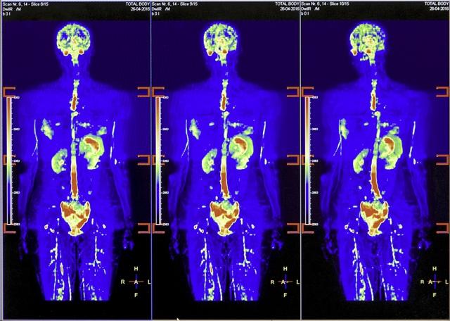 Visa ķermeņa magnētiskās rezonanses skrīninga izmeklējums
