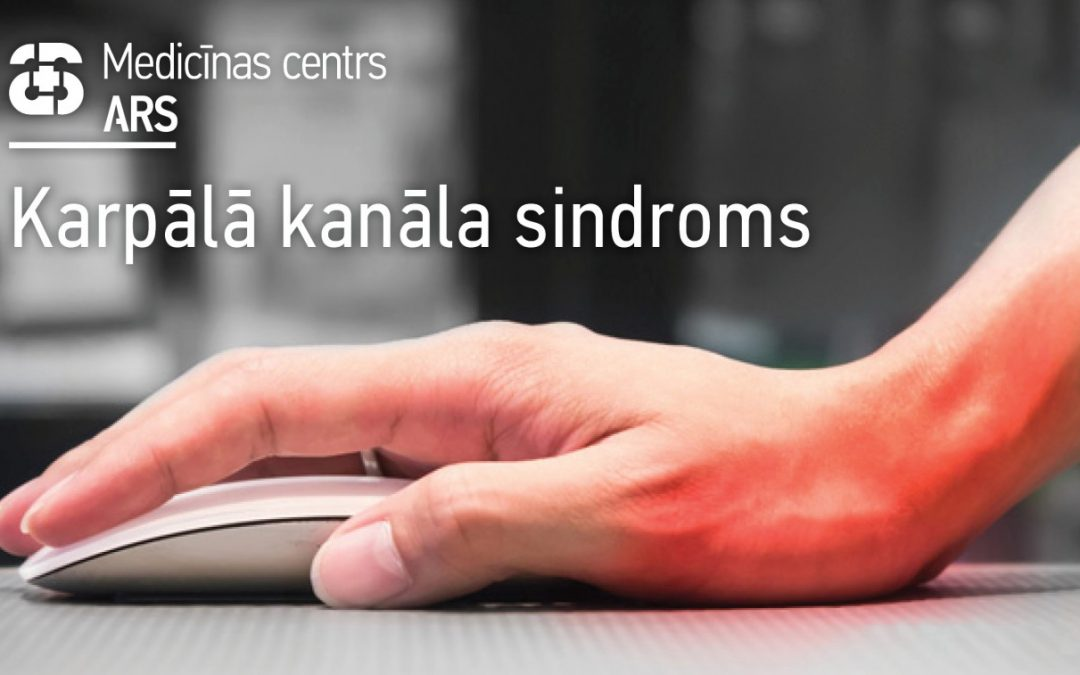 Tirpst un sāp rokas – karpālā kanāla sindroms