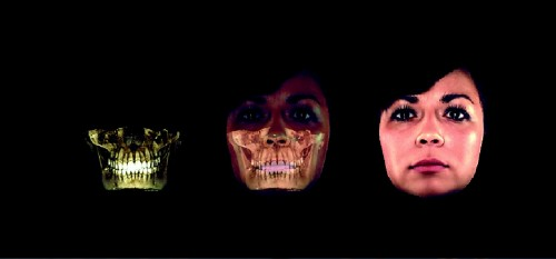 3D stomatoloģiskais panorāmas rentgens