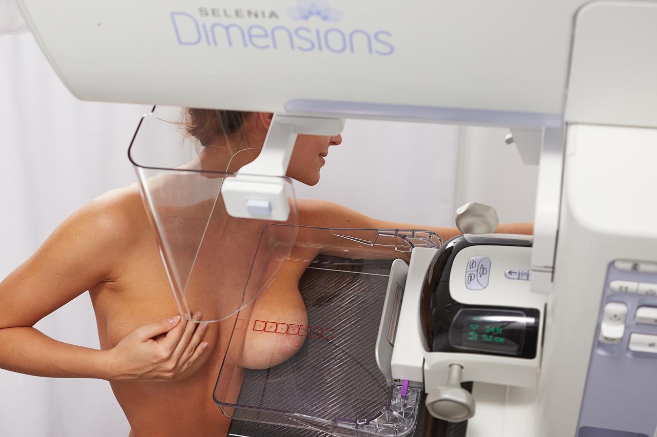 Mamogrāfija ar tomosintēzi – jauna iekārta