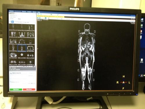 MR skrīninga izmeklējums visam ķermenim