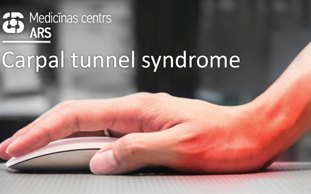 Numb and painful hands – carpal tunnel syndrome