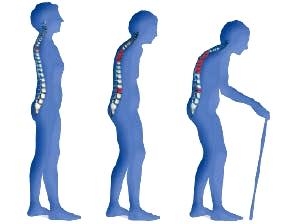 Мази и гели при остеохондрозе лечение