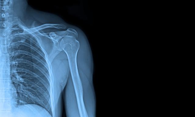 No 3.oktobra ARS rentgena nodaļa strādā arī sestdienās